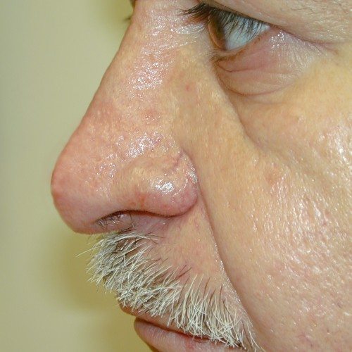 Rhinoplasty 3 After Photo