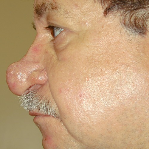 Rhinoplasty 3 Before Photo
