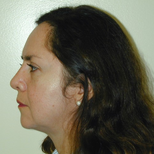 Rhinoplasty 5 After Photo