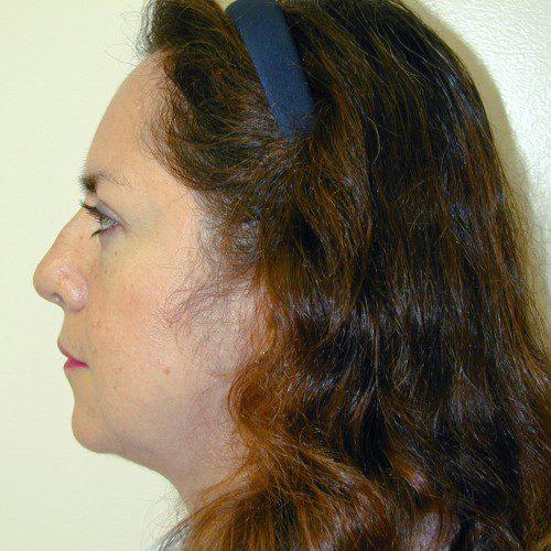 Rhinoplasty 5 Before Photo