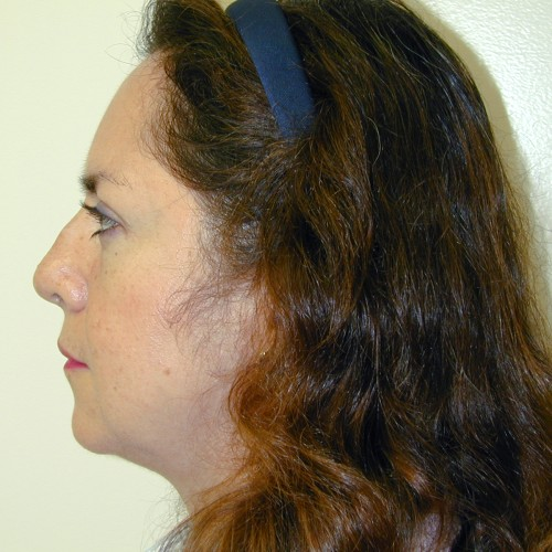 Rhinoplasty 5 Before Photo