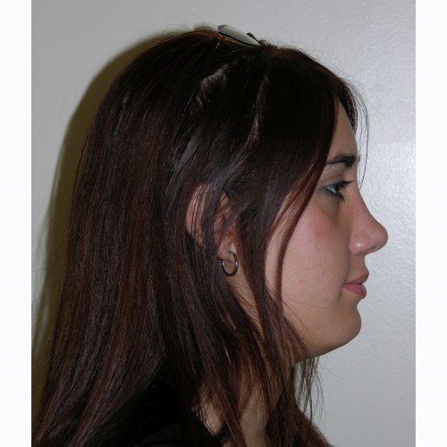 Rhinoplasty 7 After Photo