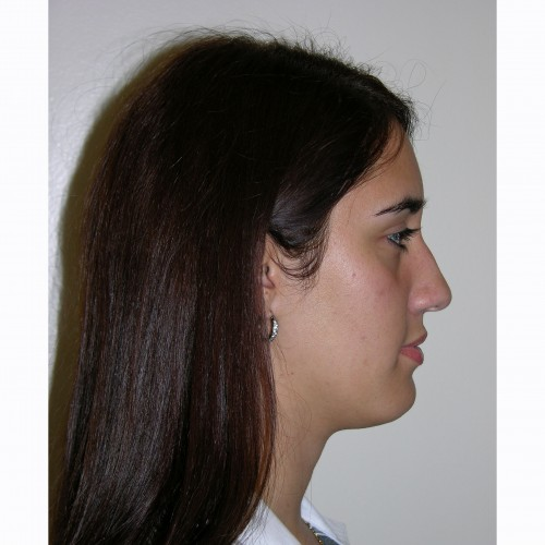Rhinoplasty 7 Before Photo