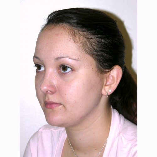 Rhinoplasty 10 After Photo