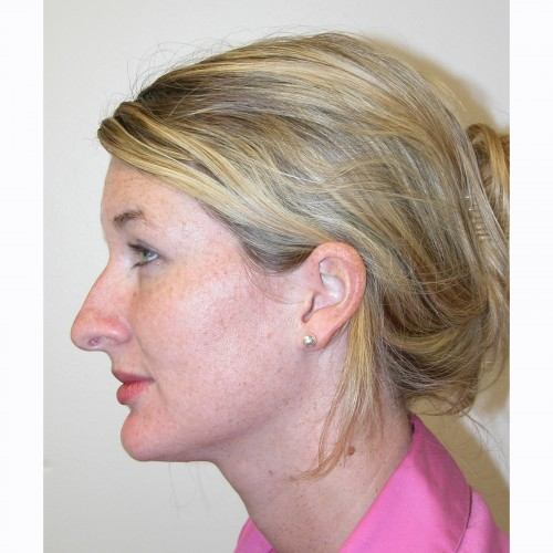 Rhinoplasty 12 Before Photo