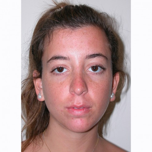 Rhinoplasty 14 After Photo