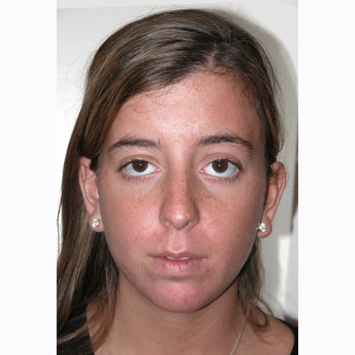 Rhinoplasty 14 Before Photo