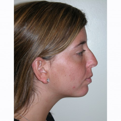 Rhinoplasty 14 Before Photo