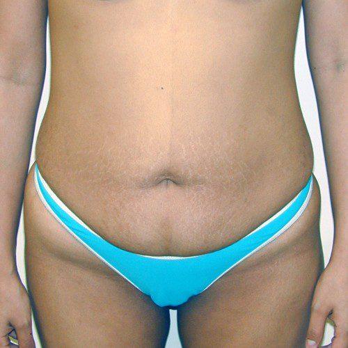Abdominoplasty 14 Before Photo