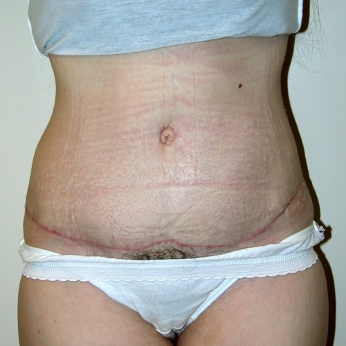 Abdominoplasty 15 After Photo