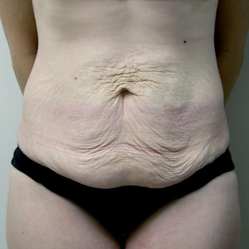 Abdominoplasty 15 Before Photo