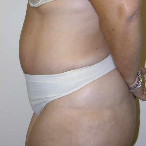 Abdominoplasty 16 After Photo