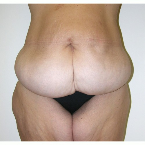 Abdominoplasty 16 Before Photo