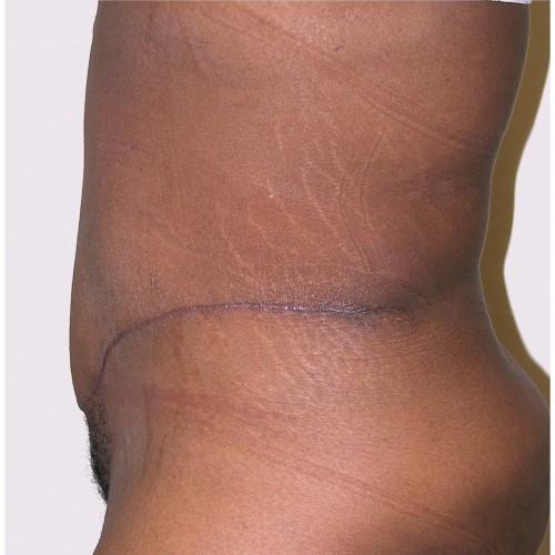 Abdominoplasty 17 After Photo