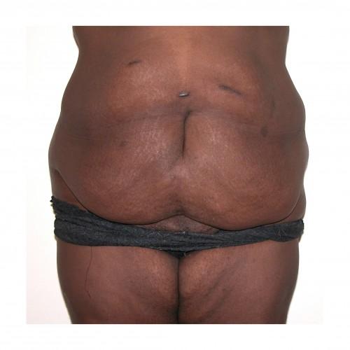 Abdominoplasty 17 Before Photo
