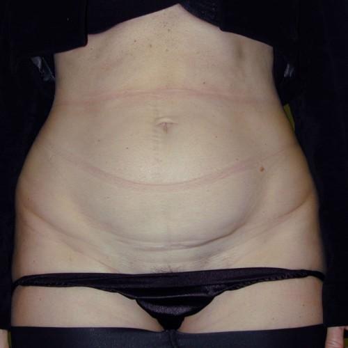 Abdominoplasty 6 Before Photo