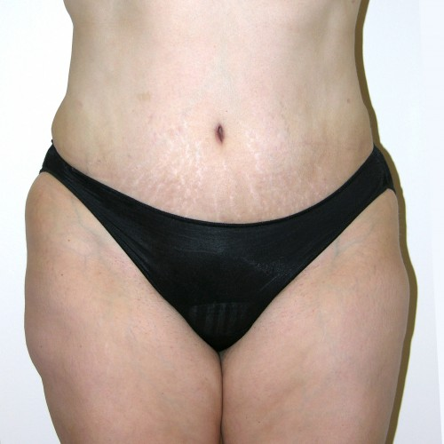 Abdominoplasty 19 After Photo