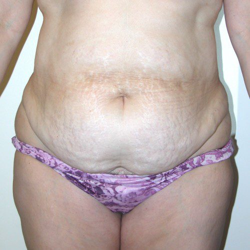 Abdominoplasty 19 Before Photo