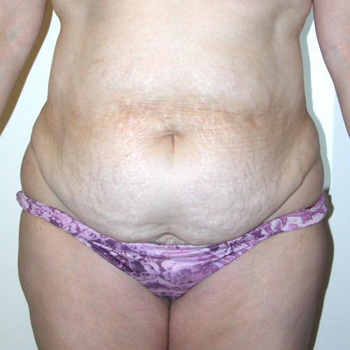 Abdominoplasty 19 Before Photo