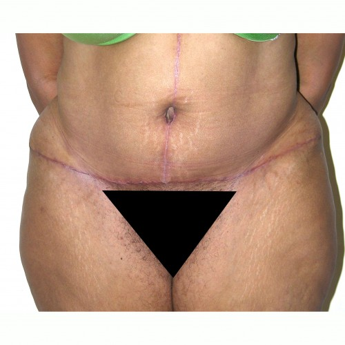 Abdominoplasty 20 After Photo