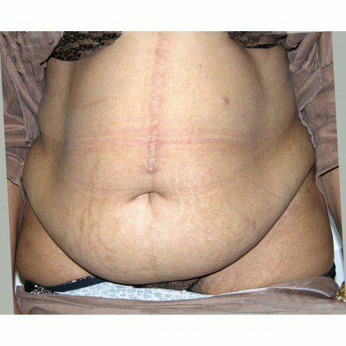 Abdominoplasty 20 Before Photo