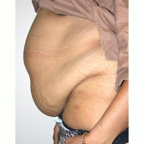Abdominoplasty 20 Before Photo