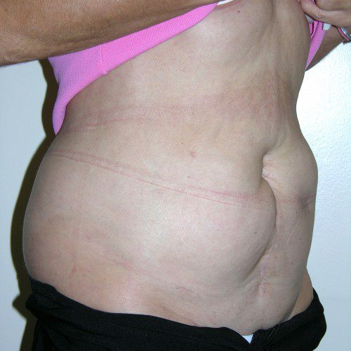 Abdominoplasty 22 Before Photo
