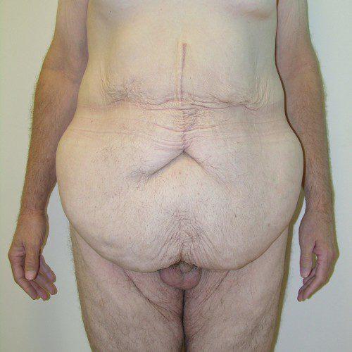 Abdominoplasty 23 Before Photo