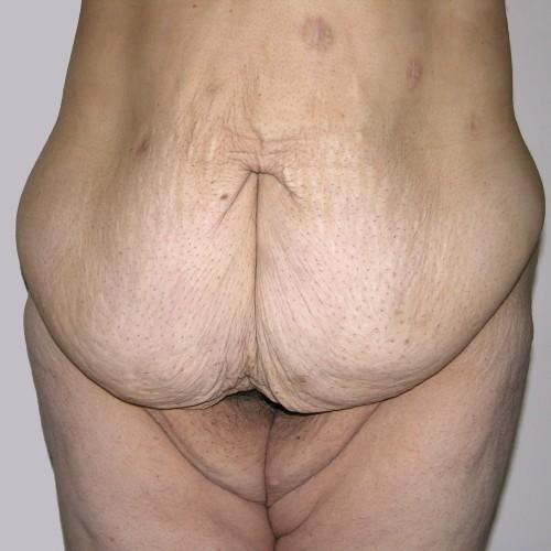 Abdominoplasty 24 Before Photo