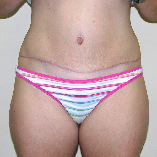 Abdominoplasty 25 Before Photo