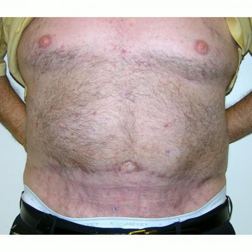 Abdominoplasty 26 After Photo