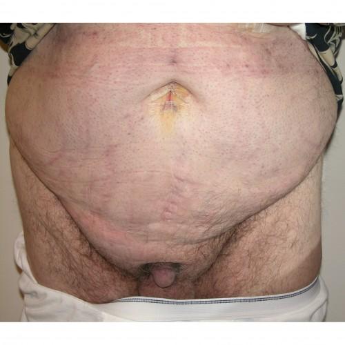Abdominoplasty 26 Before Photo