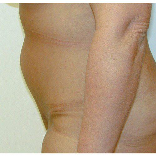 Abdominoplasty 27 After Photo