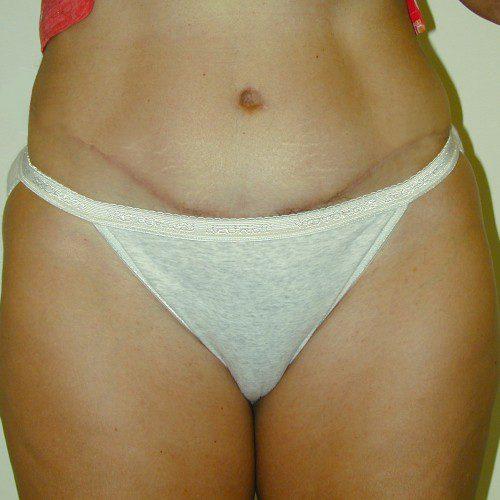 Abdominoplasty 38 After Photo