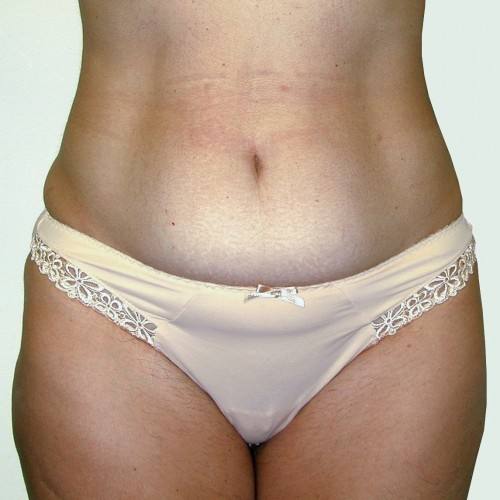 Abdominoplasty 38 Before Photo