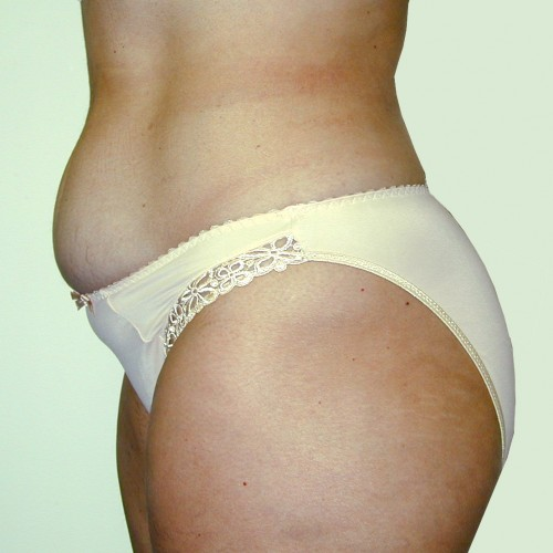 Abdominoplasty 7 Before Photo