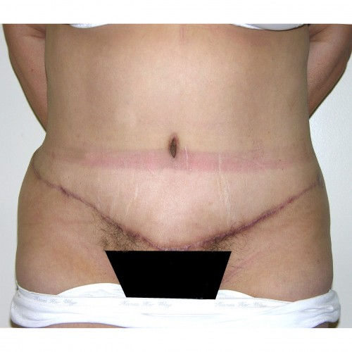 Abdominoplasty 28 After Photo