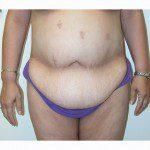 Abdominoplasty 28 Before Photo - 12