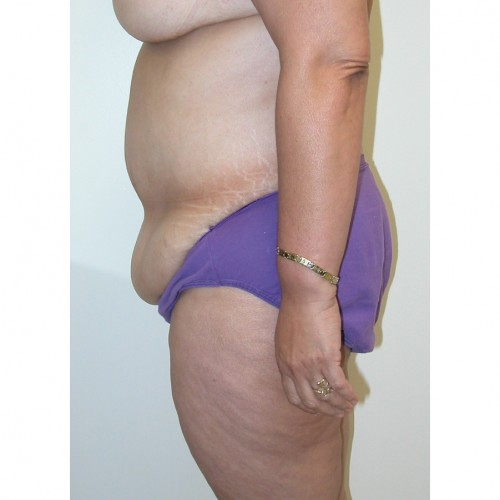 Abdominoplasty 28 Before Photo
