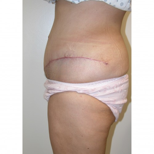 Abdominoplasty 29 After Photo