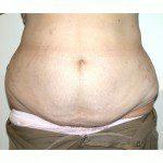 Abdominoplasty 29 Before Photo - 11