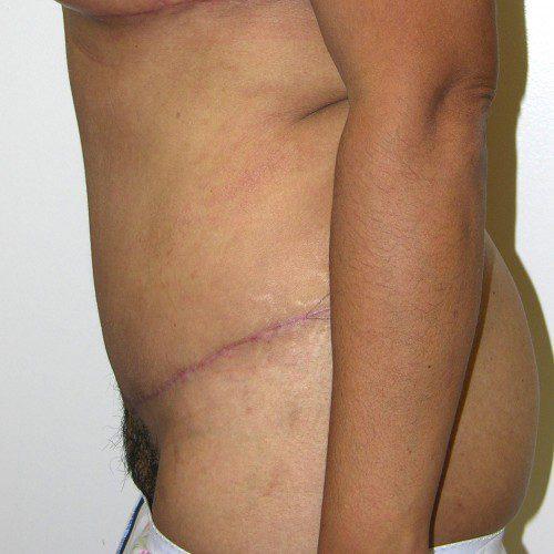 Abdominoplasty 30 After Photo