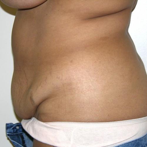 Abdominoplasty 30 Before Photo