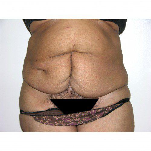 Abdominoplasty 32 Before Photo