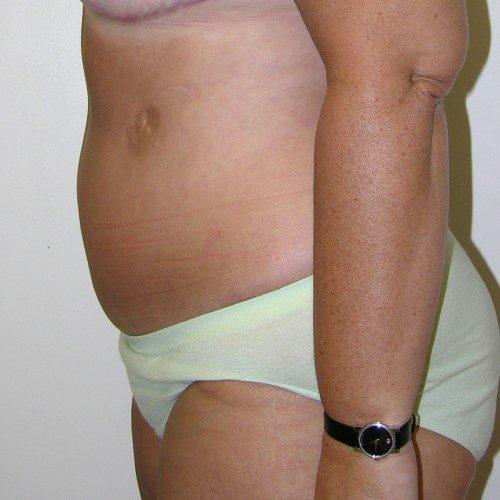 Abdominoplasty 33 After Photo