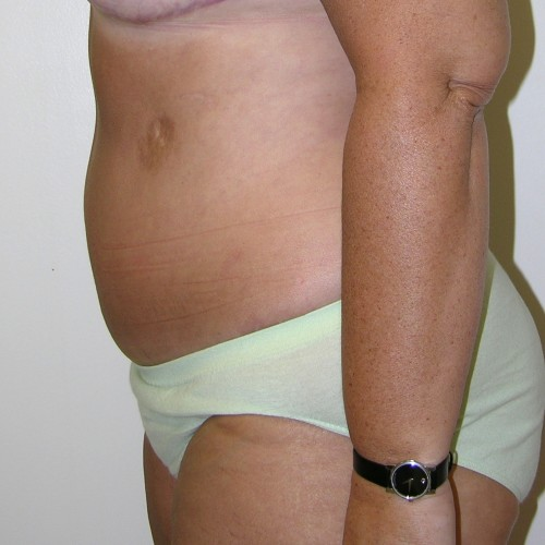 Abdominoplasty 33 After Photo