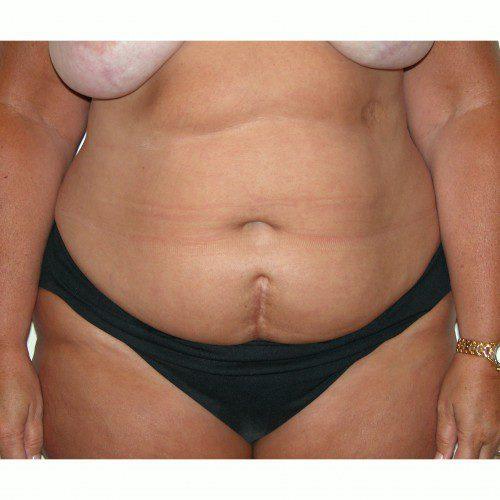Abdominoplasty 33 Before Photo