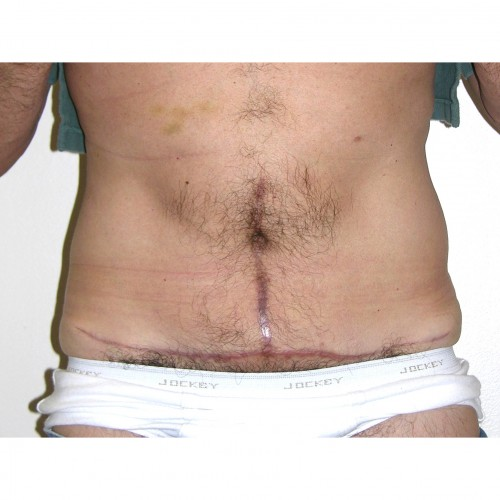 Abdominoplasty 34 After Photo