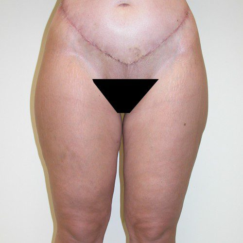 Abdominoplasty 35 After Photo