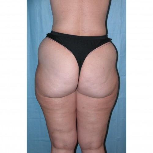 Abdominoplasty 35 Before Photo